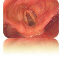 Video endoscop flexibil MBC4